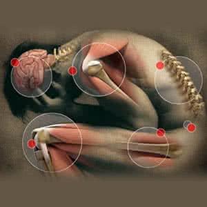 ízületi és izomfájdalmak receptjei milyen gyógyszerek az alsó végtagok artrózisának kezelésére